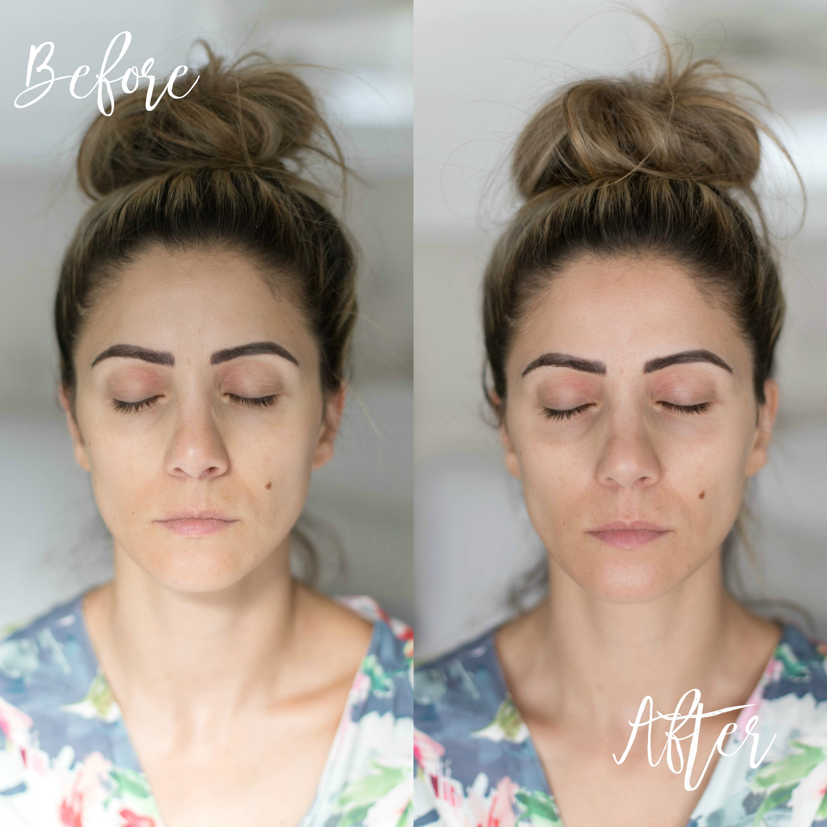 Connecticut life and style blogger Lauren McBride shares how to use the NuFACE FIX and benefits of microcurrent therapy.